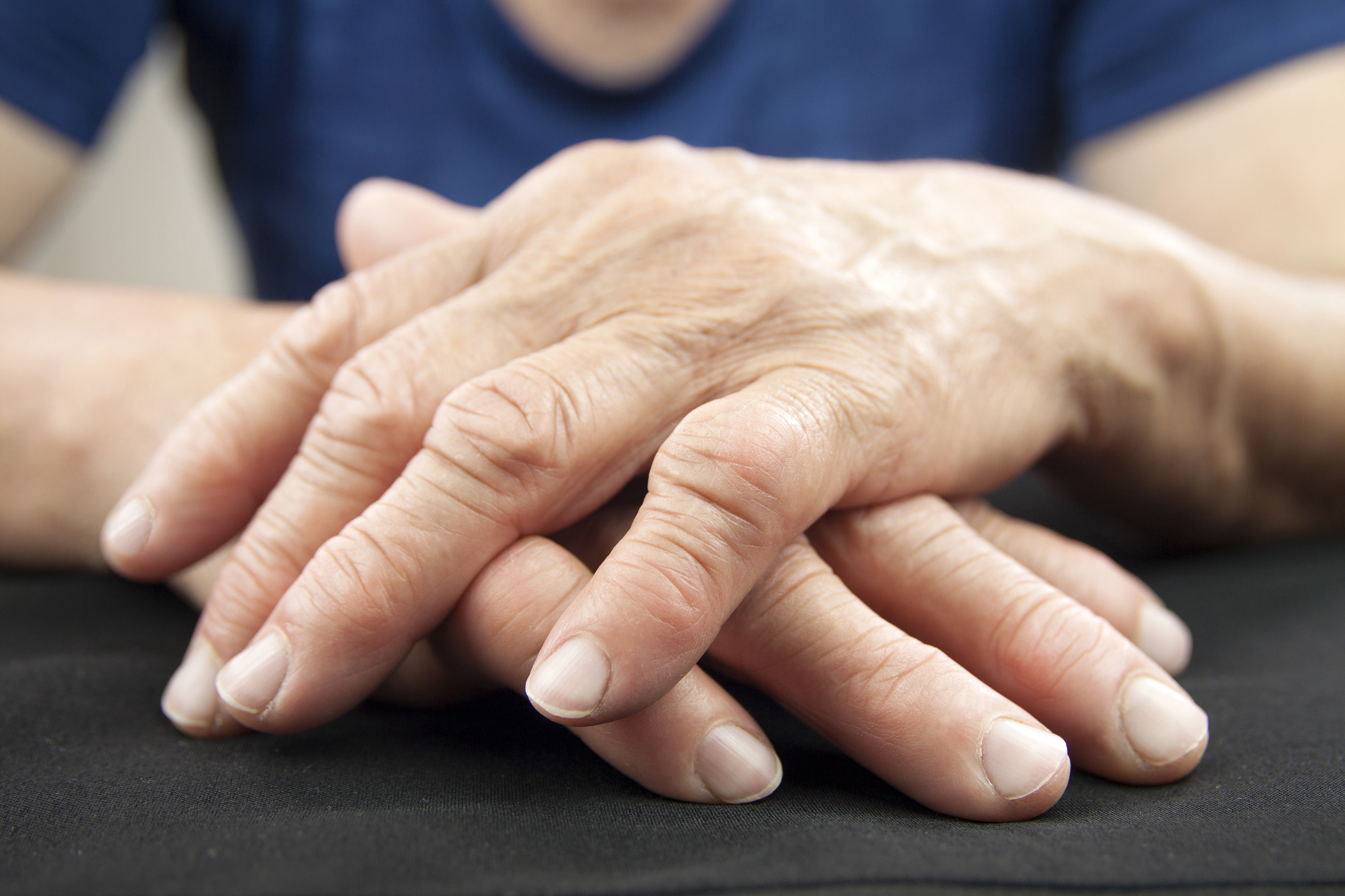Hand Of Woman Deformed From Rheumatoid Arthritis ** Note: Shallow depth of field