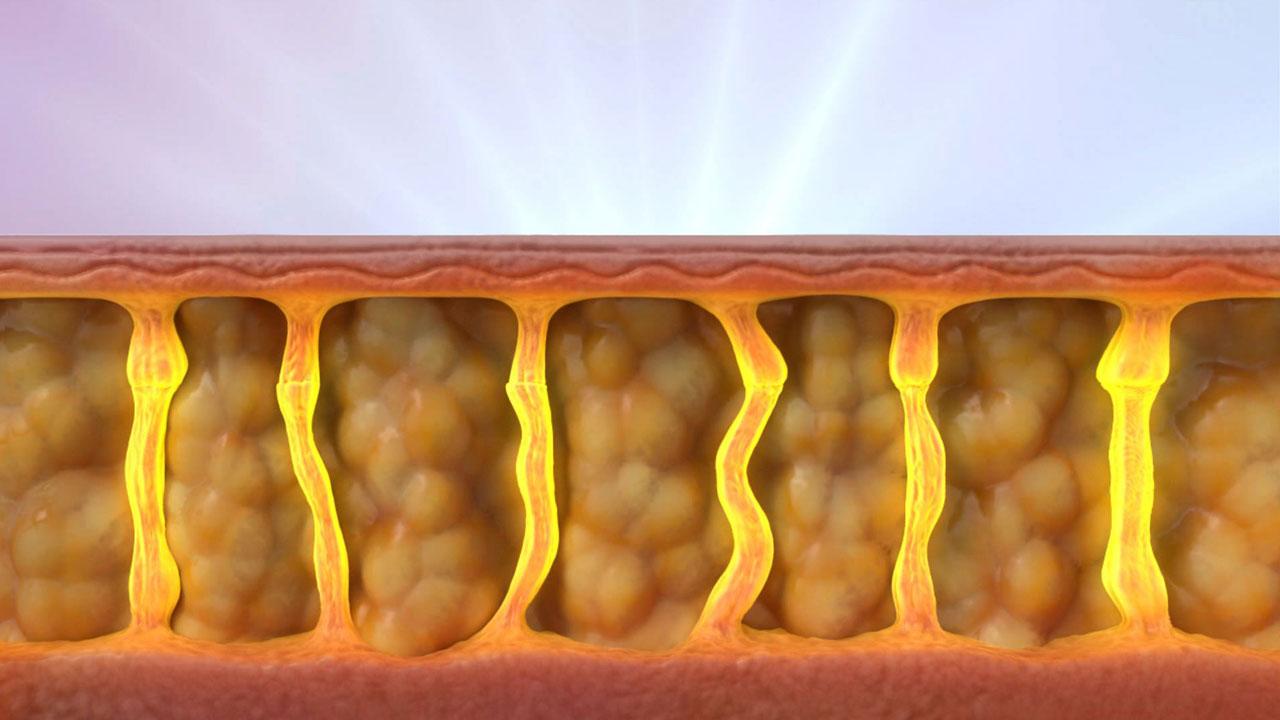 gordura-celulite