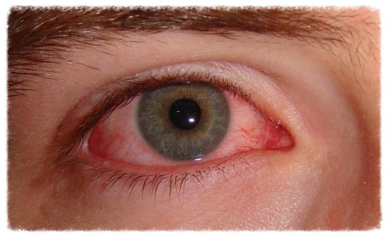 Olhos vermelhos