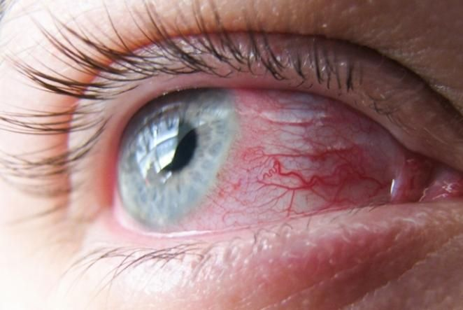vasos-dos-olhos
