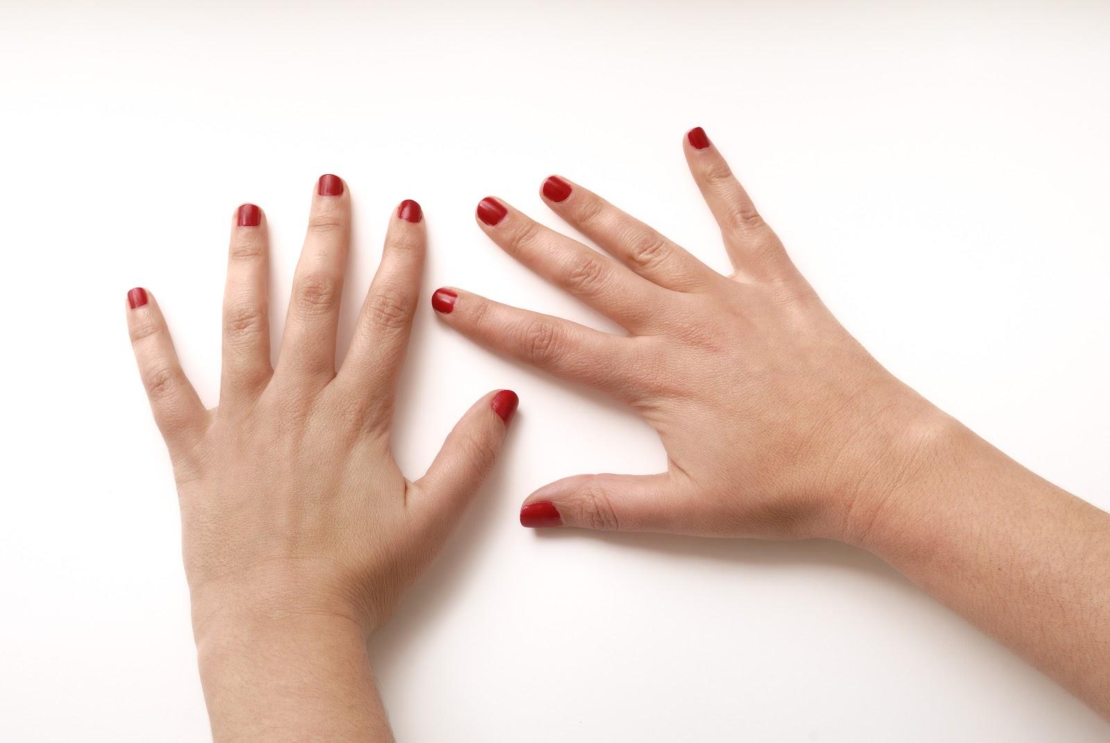como-tratar-a-artrite