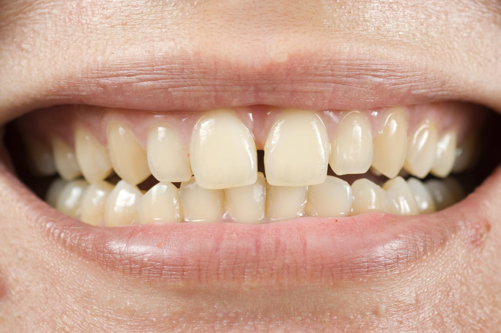 Resultado de imagem para dentes amarelos