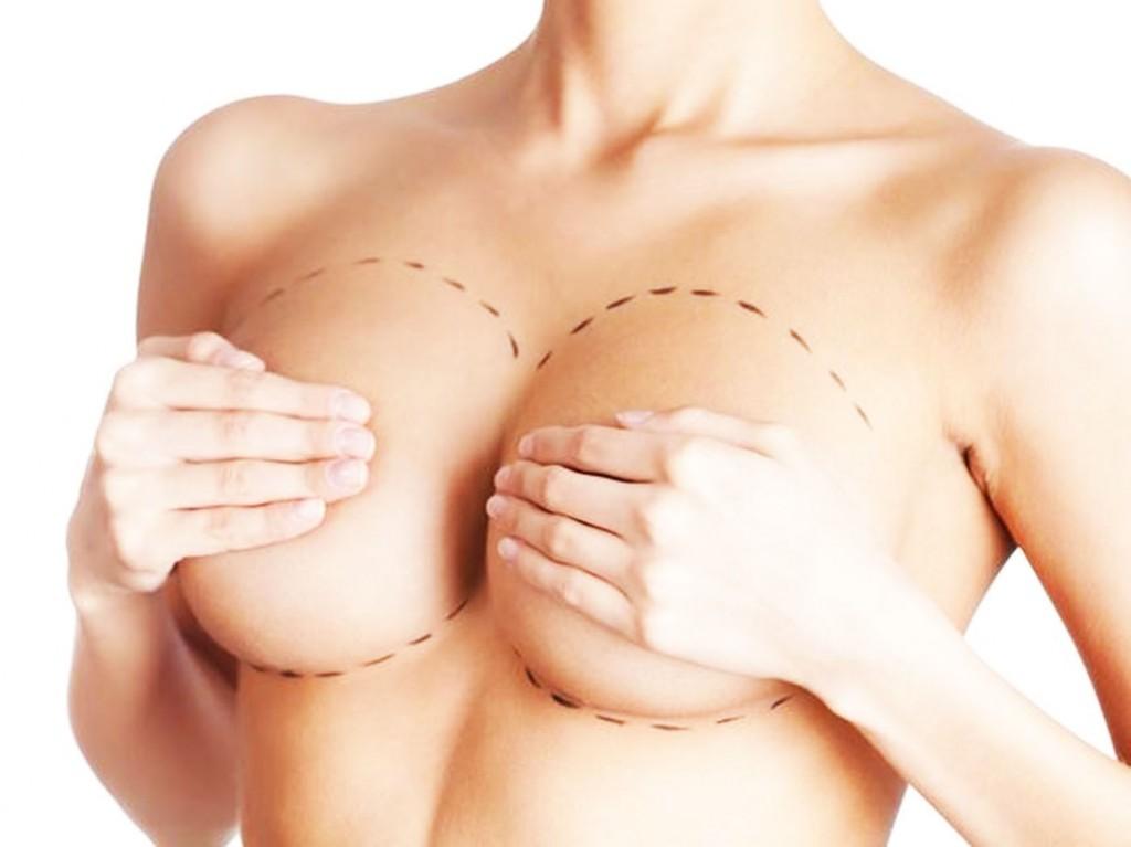 aumento-das-mamas