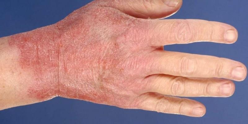 causas-da-dermatite