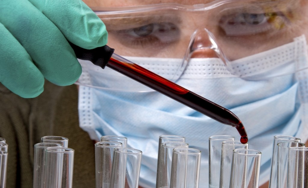 A medicine dropper dropping blood into a test tube.