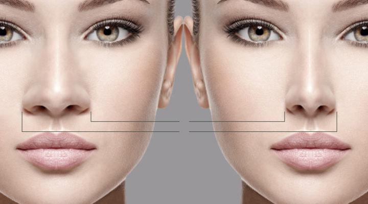 Fotos cirurgia plastica de nariz 38