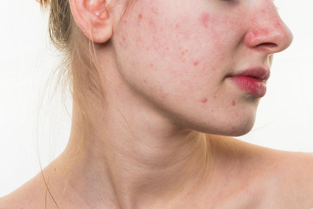 acnes