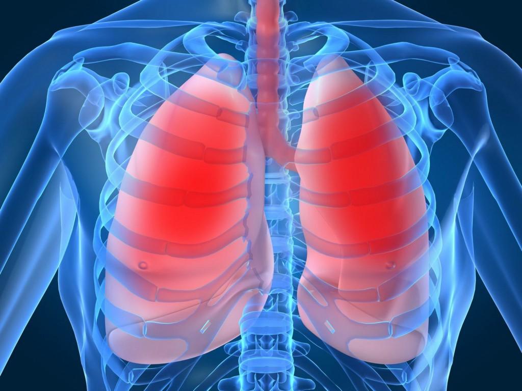 sintomas da bronquite
