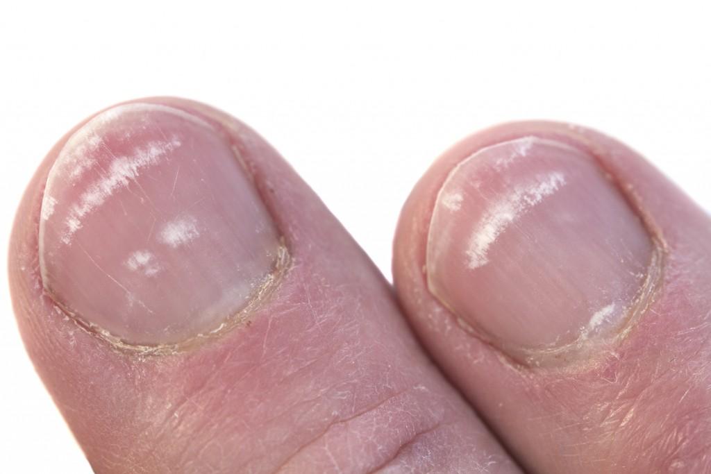 Closeup of two Fingernails with leukonychia