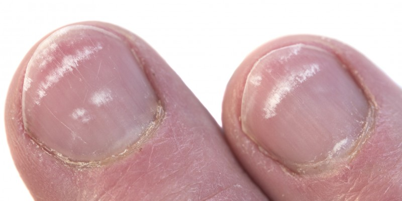 Closeup of two Fingernails with leukonychia