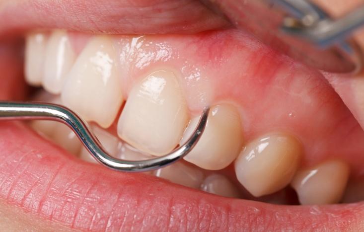 como tratar a periodontite
