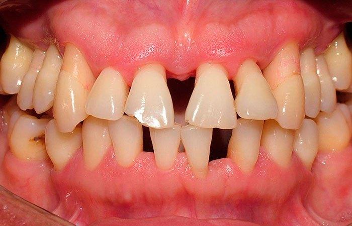 tratamento da periodontite