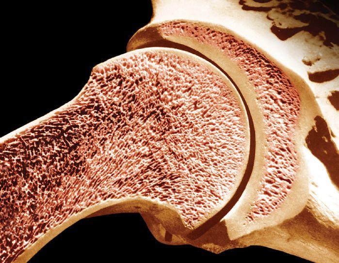 causas da osteomielite