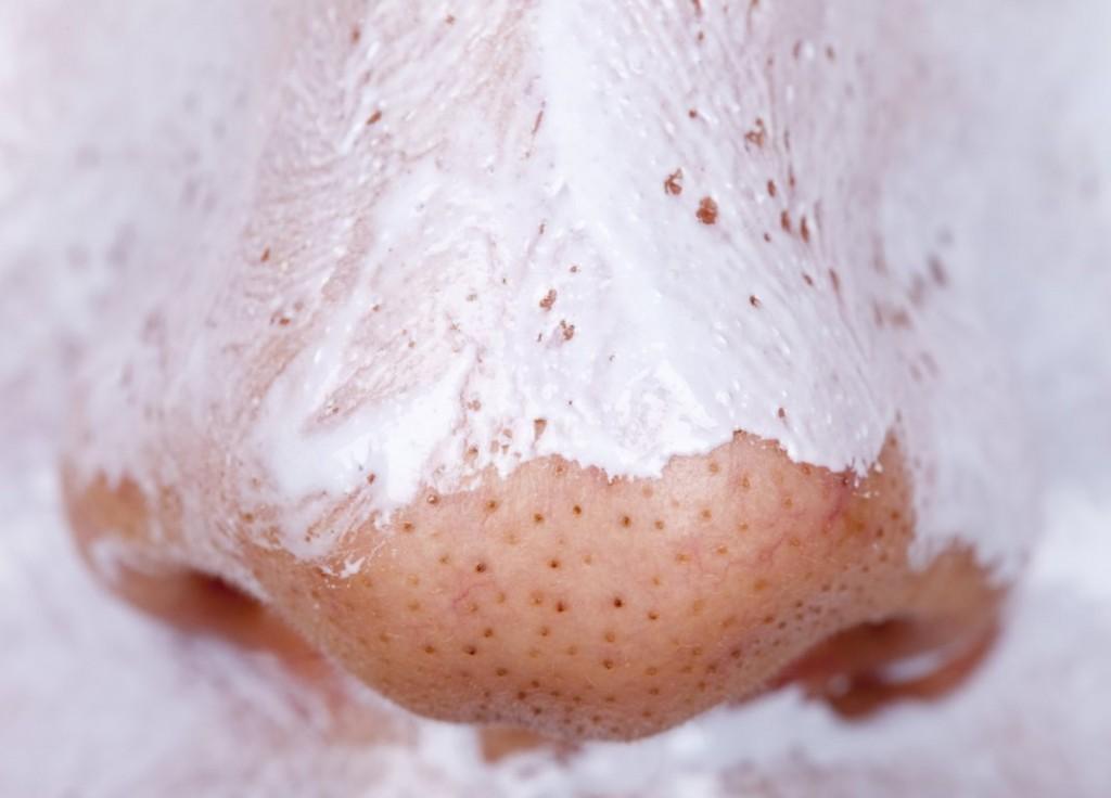 cravos acnes e espinhas