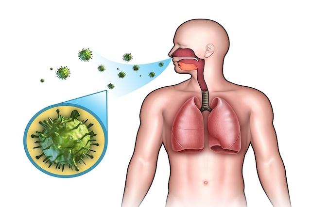 Meningite Viral