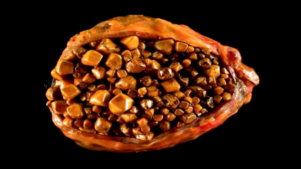 pedra na vesicula causas