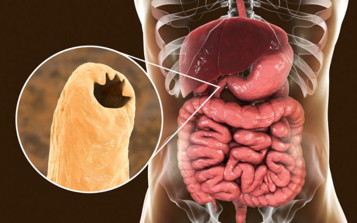 Ancilostomiase