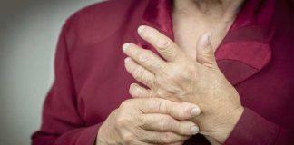 Artrite Reumatoide