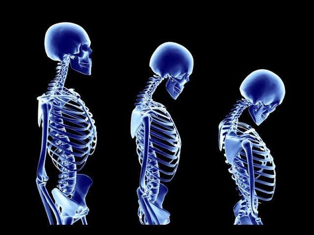 Artrose lombar