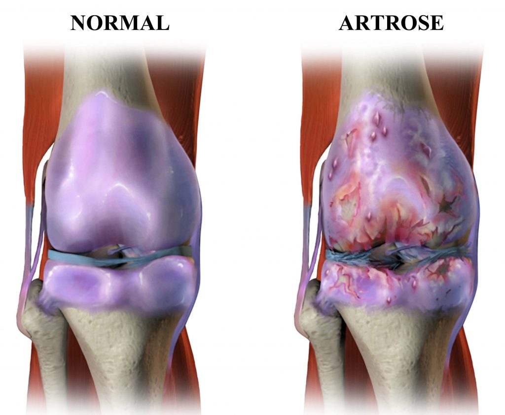 Normal vs Artrose