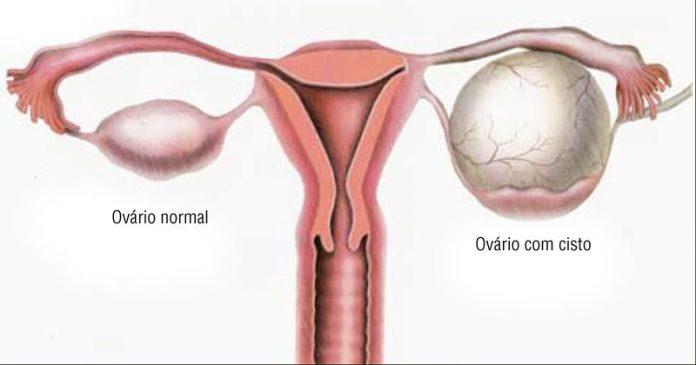 Cisto de ovário