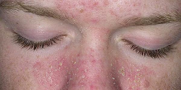 [Imagen: dermatite-seborreica2.jpg]