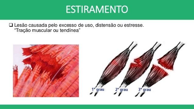 Tensão cicatrização da costela da de tempo muscular