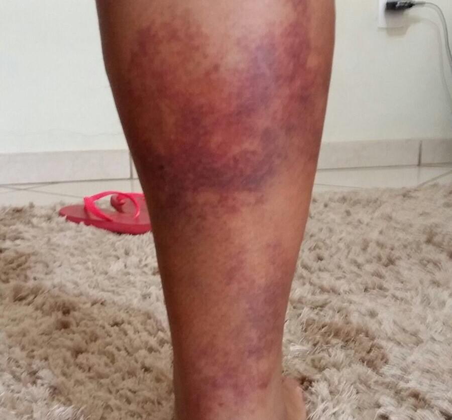 Inchaço lesão na hematomas panturrilha