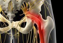 Nervo ciático inflamado
