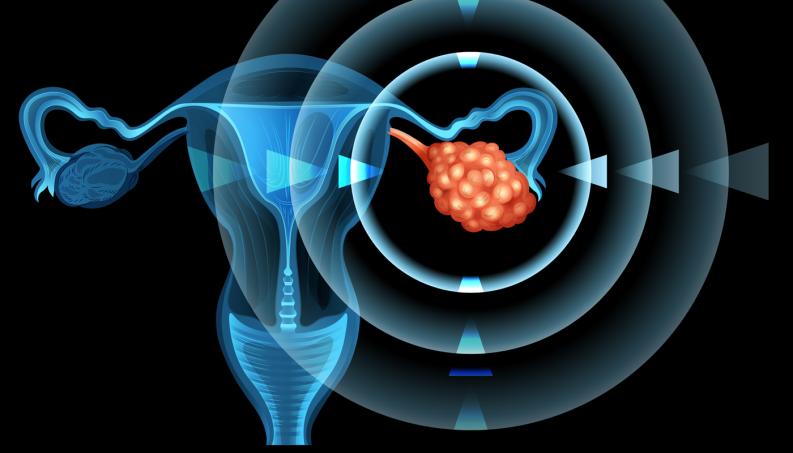Cisto luteo ovario esquerdo