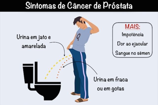 sintomas de prostata grande