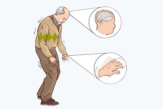 Sintomas Parkinson