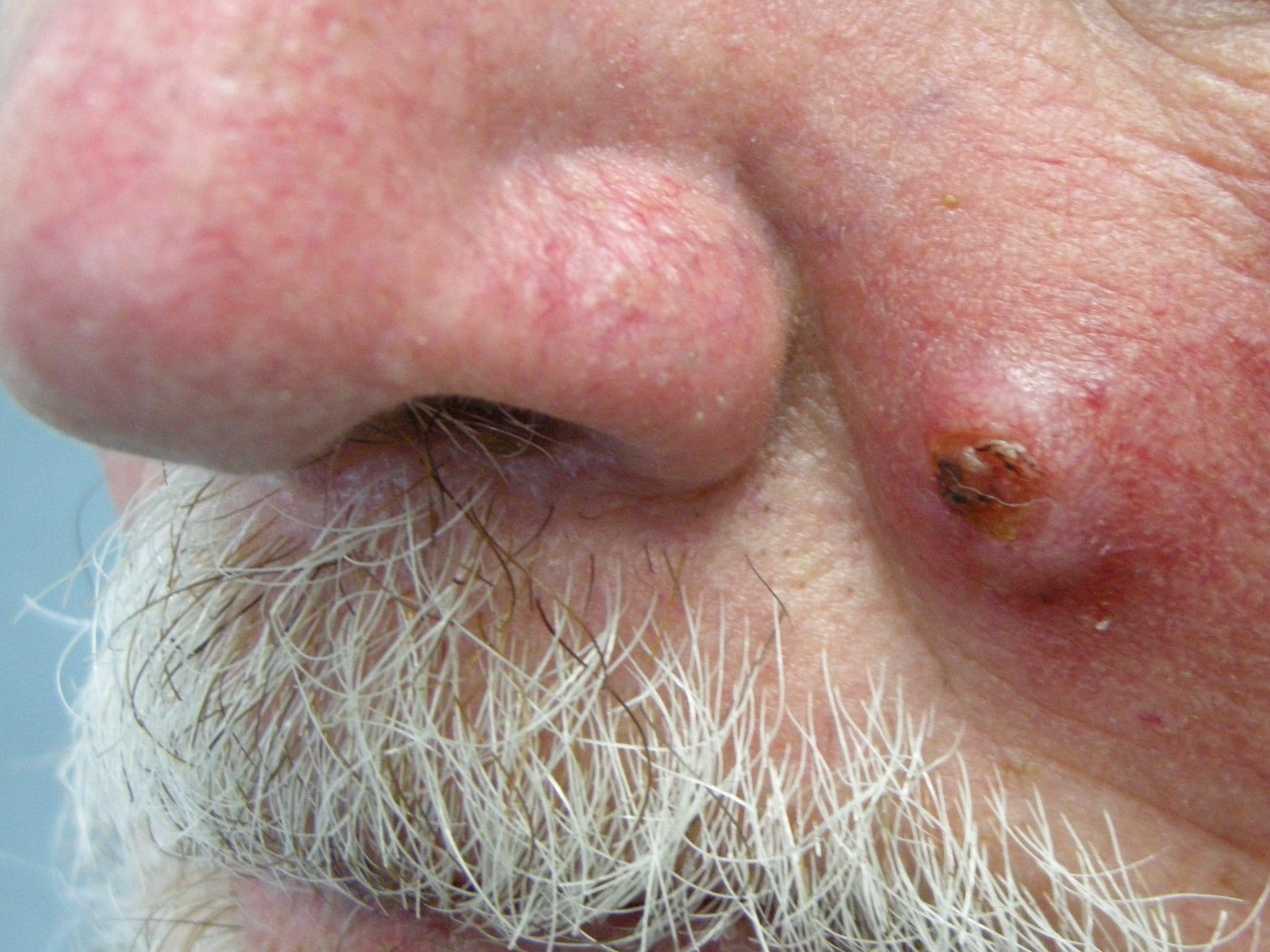 carcinoma de celulas escamosas in situ