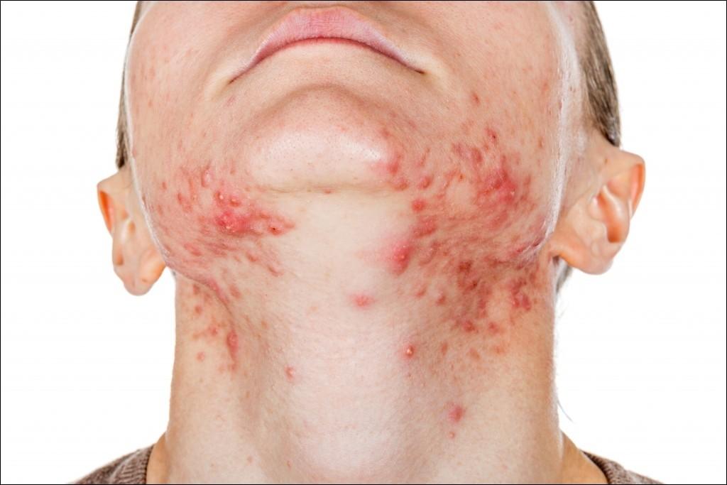 Anzeichen Corina Virus