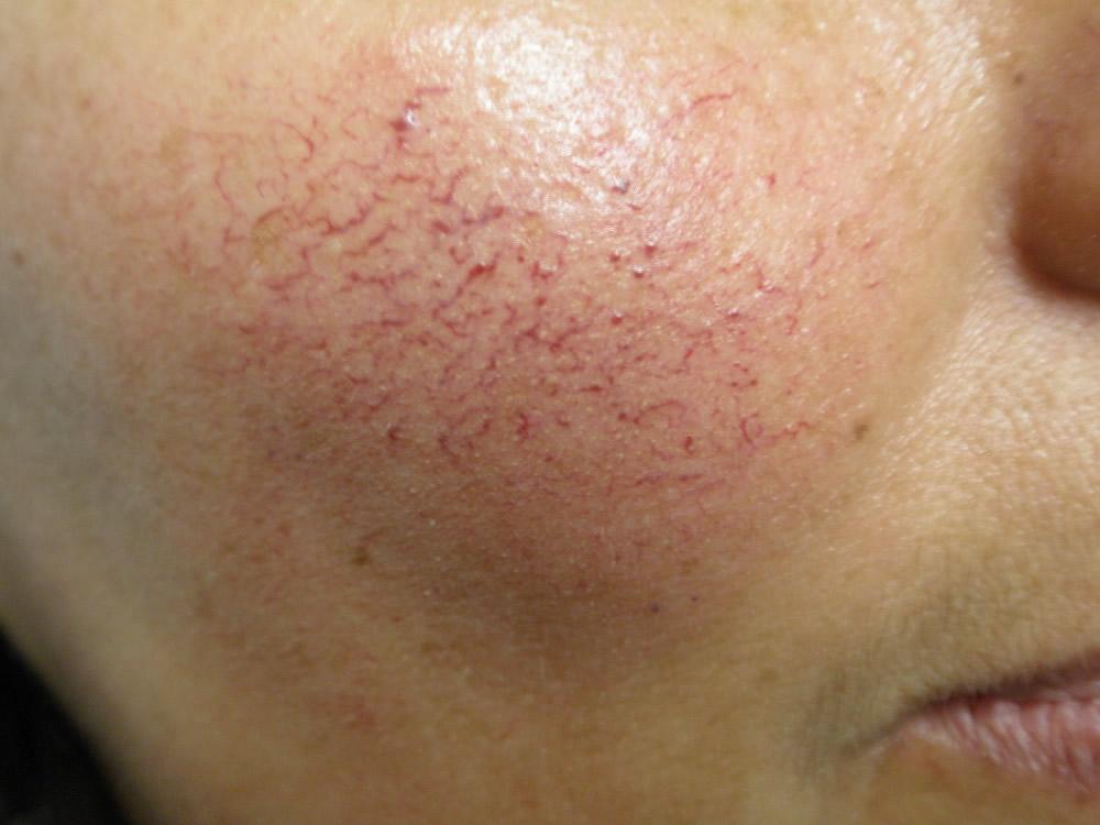 Razões para o coágulo de sangue no pescoço